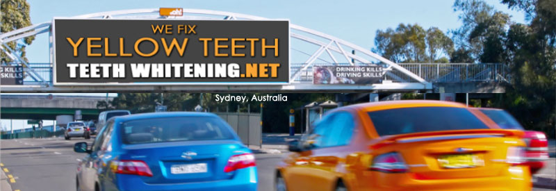 We Fix Yellow Teeth Billboard