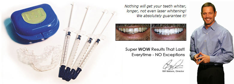 Nothing will get your teeth whiter, not even laser whitening. We absolutely guarantee it!